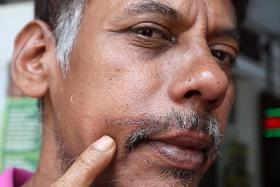 SCARRED: Mr Liakath Ali showing the scar from the slashing incident last month.