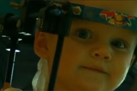 Jaxon Taylor, whose neck and head were detached, now has to wear a halo so that the bones will fuse properly.