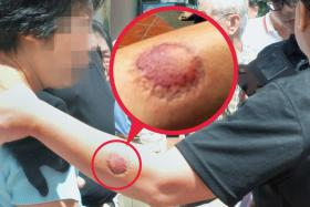 VIOLENT: The woman who bit the security guard was told to leave because she had interrupted the vote.