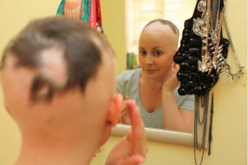 Miss Chloe Moore, 29, suffers from alopecia areata, which causes her to have bald spots.