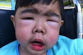 ROAD TO RECOVERY: When Hazrie Alisman Norahman was a toddler, he was so swollen from water retention that his eyes narrowed to slits and it hurt him to be picked up.