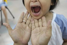 CAREFUL: A child getting her mouth checked.