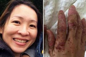 AGONY: By Day 8, the blisters on Ms Yeo's hands had ruptured, so the skin peeled.