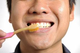 Many options for whiter teeth
