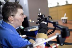 Technology allows paralysed man to move arm