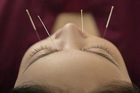 Feeling acupuncture's strong points