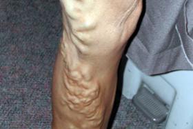 Doing the legwork: Varicose veins