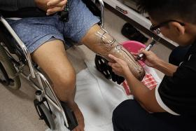 Prompt treatment can save limbs
