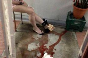 Woman bitten by 3m-long snake at HDB corridor