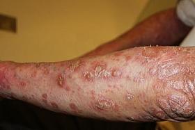 Treating psoriasis the TCM way
