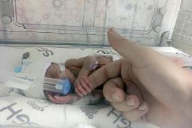 UK couple's baby born 16 weeks early