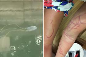 Ms Jade Dyson was badly stung by a box jellyfish (similar to the one above) when she was swimming at East Coast beach.