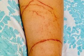 Savvy mum doused girl's jellyfish injuries with vinegar