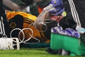 Wolverhampton Wanderers striker Raul Jimenez Jimenez receiving treatment from medics after colliding with Arsenal defender David Luiz in an English Premier League match at the Emirates Stadium.