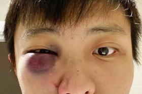 UK court finds teen's assault of Singaporean student a racist act