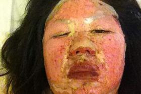 Gas blast during hotpot meal costs woman her new job