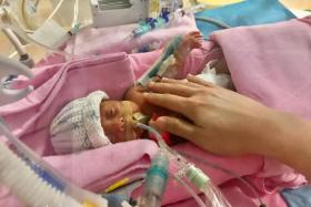 Kaylee (above), the older child, weighed 1,036g and Kayla weighed 930g when they were born.