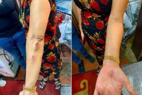 Madam Hindocha Nita Vishnubhai sustained injuries on her arms and hands after the incident last Friday in Choa Chu Kang.