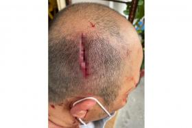 Mr Toh needed five stitches for the 4cm wound on his head.