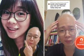 """TikTok user Adel hopes to create awareness for alopecia and is happy to have connected with """"fellow botaks"""" through the app."""