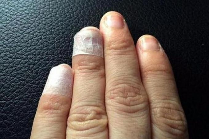 Mother loses hair, fingernails in HFMD horror , Latest Singapore ...