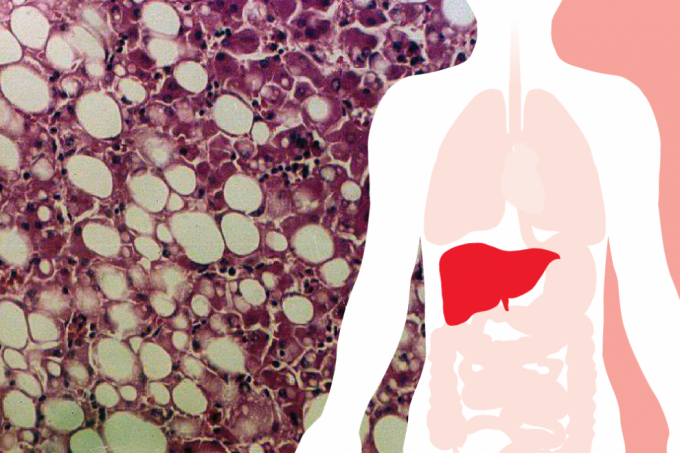 Nationwide study to aid early detection of primary liver cancer